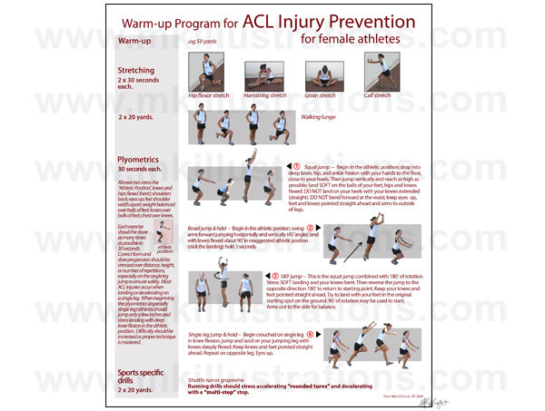 ACL_injusry_prevention_poster