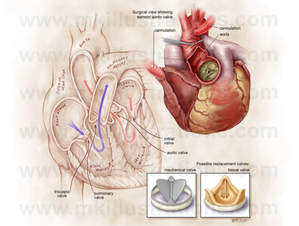 aortic_valve_replacement