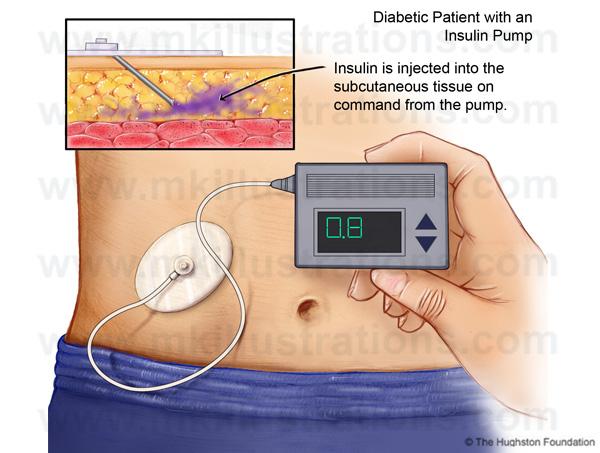 diabetic_patient_with_insulin_pump
