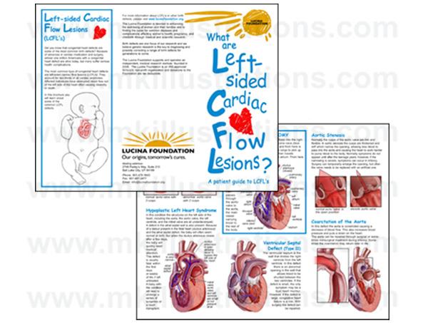 left_sided_cardiac_flow_lesions