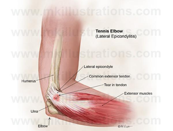 tennis_elbow